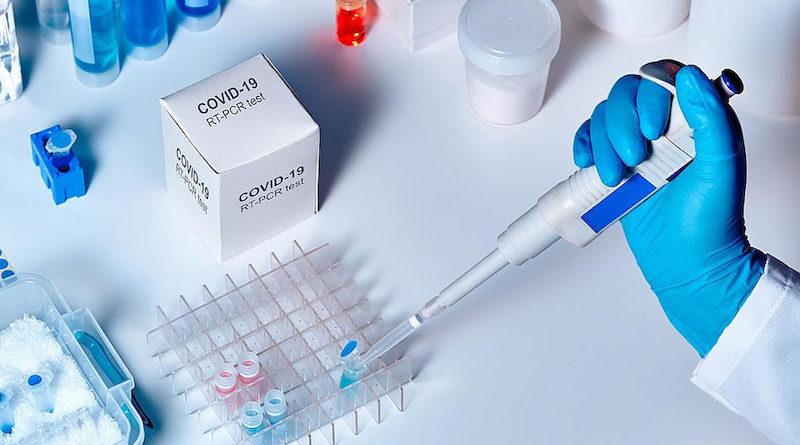 Безкоштовно аналіз на COVID-19 можна здати за направленням лікаря у 71 пункті тестування.